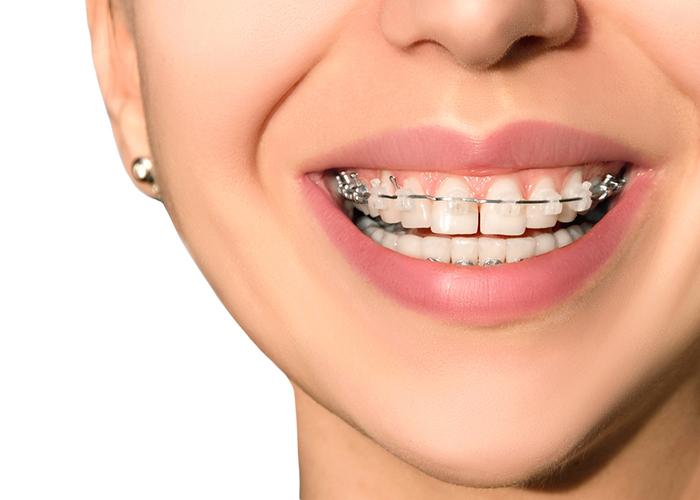 Ortodonzia Oristano