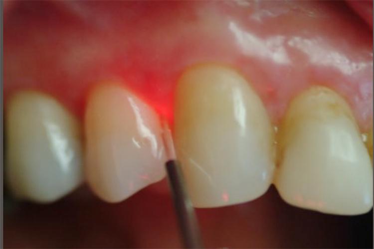 Parodontologia dentale